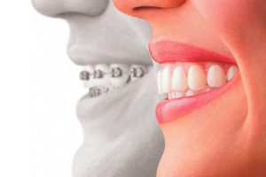 Braces Care and Maintenance